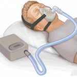cpap could cause central sleep apnea