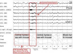 Cetral sleep apnea treatment options